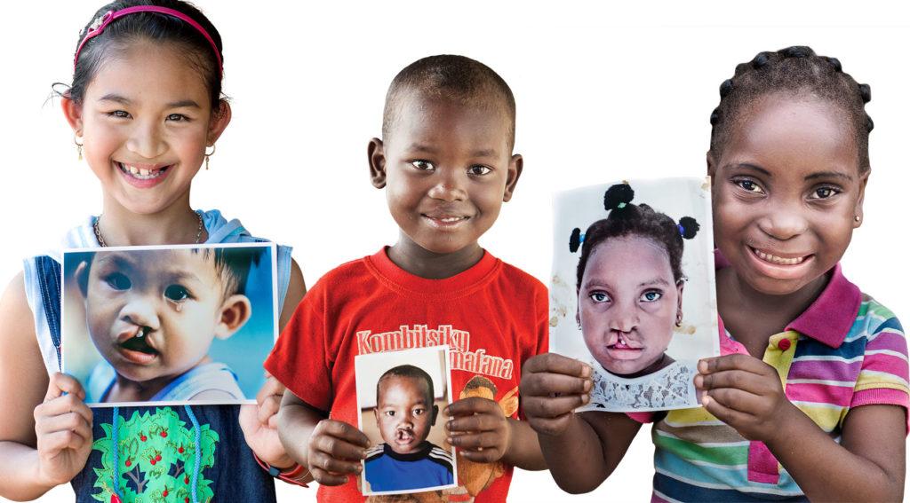 Tack vare generösa givare, däribland privatpersoner, föreningar och företag, har Operation Smile hittills genomfört över 290 000 operationer i Afrika, Asien och Latinamerika. Foto: Operation Smile